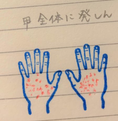 手の甲の湿疹記録